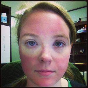 Facial edema burning eyes have